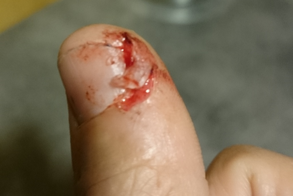 Thumb injury that was bandaged using the dog first aid kit